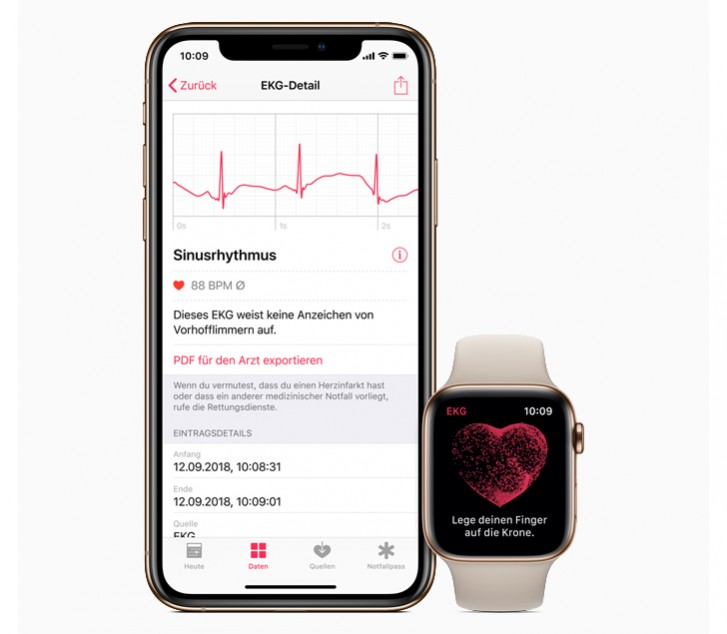 Apple Watch ECG app brings atrial fibrillation detection to the UK